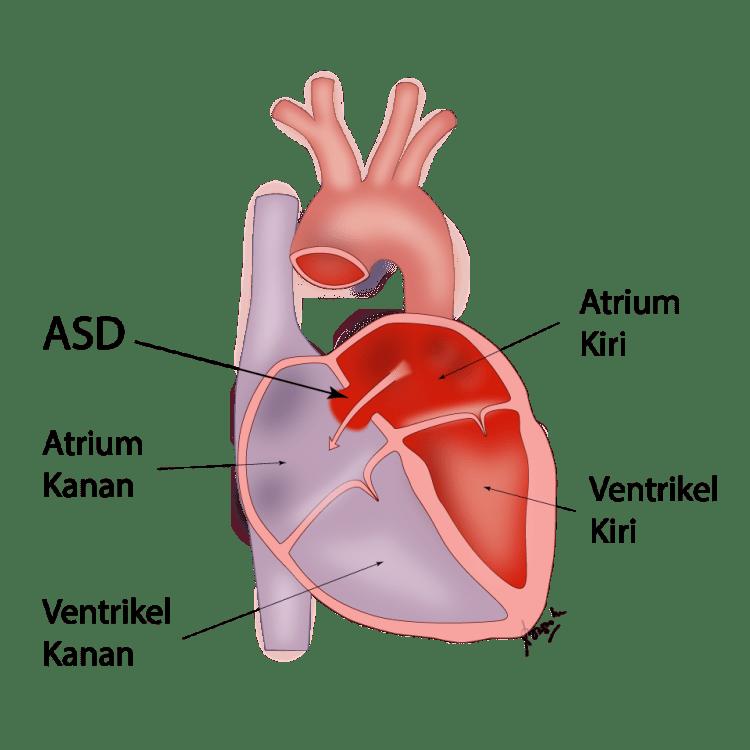 Gambar operasi jantung bocor