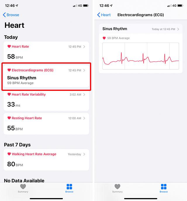 ecg reports health app
