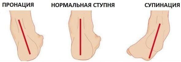 пронация стоп