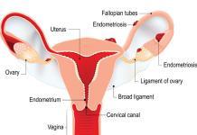 women who have endometriosis