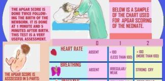 one minute after birth immediate medical attention apgar 100 beats per minute