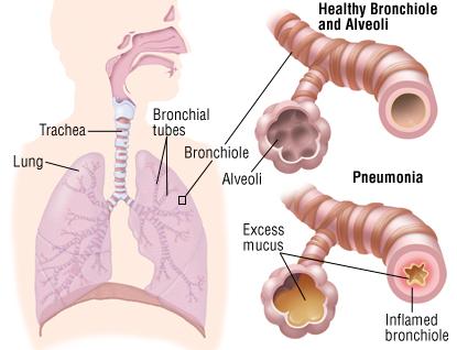 pneumonia patient how is pneumonia diagnosed diagnosis of pneumonia