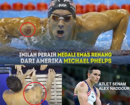 Atlet Olimpiade AS Suka Bekam. Membantu Penyembuhan Mereka