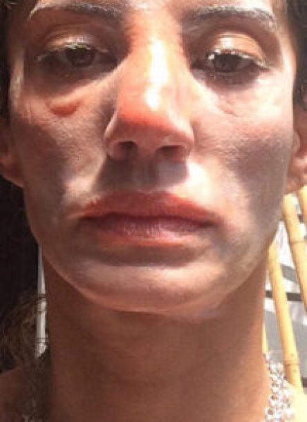 Así quedó el rostro de Jaitt luego del ataque de su supuesto ex (Cortesía)
