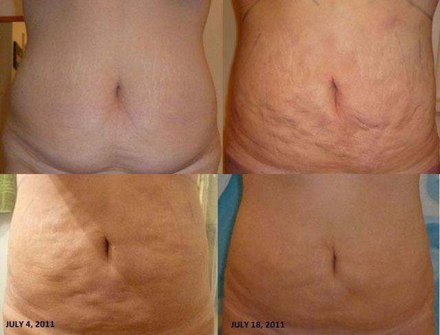 Efecte după liposucție