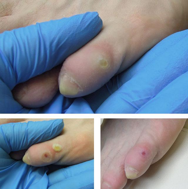 cum se tratează îngroșarea articulațiilor de pe degete)