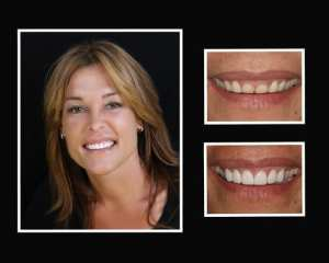 Colleen before and after restorative dentist