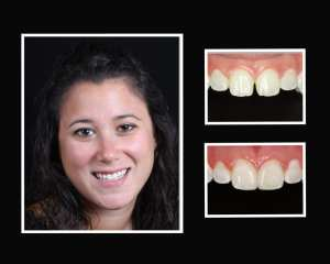 Elyse before and after restorative dentist