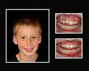 Peter before and after cosmetic dentist Sal Lotardo