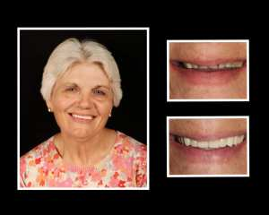 Angelina before and after porcelain veneers in Roslyn NY