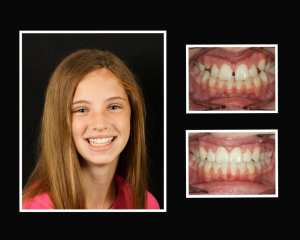Emily before and after orthodontics in Roslyn NY