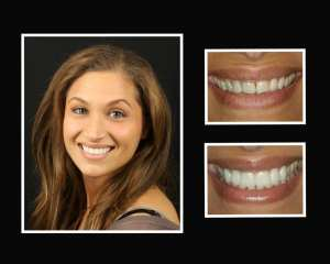 Jackie before and after porcelain veneers in Roslyn NY