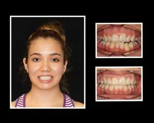 Karla before and after orthodontics in Roslyn NY