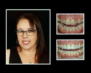 Rita before and after porcelain veneers in Roslyn NY