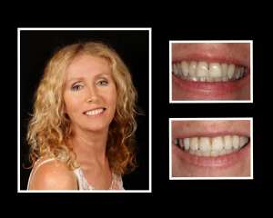 Alice before and after orthodontics in Long Island