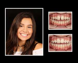 Kristyn before and after orthodontics in Roslyn NY