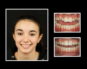 Maria before and after orthodontics in Long Island