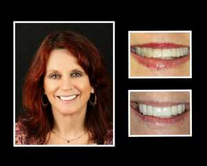 Sheila before and after teeth implants in Long Island NY