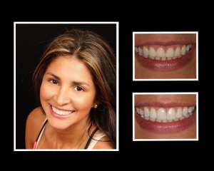 Francy before and after cosmetic dentistry
