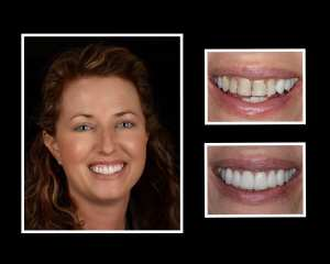Jennifer before and after cosmetic dentistry