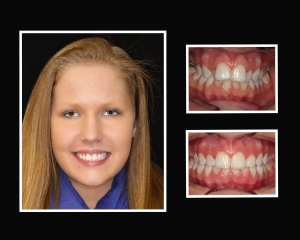 Nichole before and after orthodontics in Roslyn NY