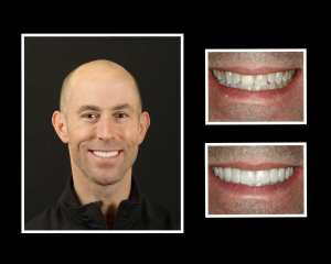 Vinny before and after cosmetic dentistry