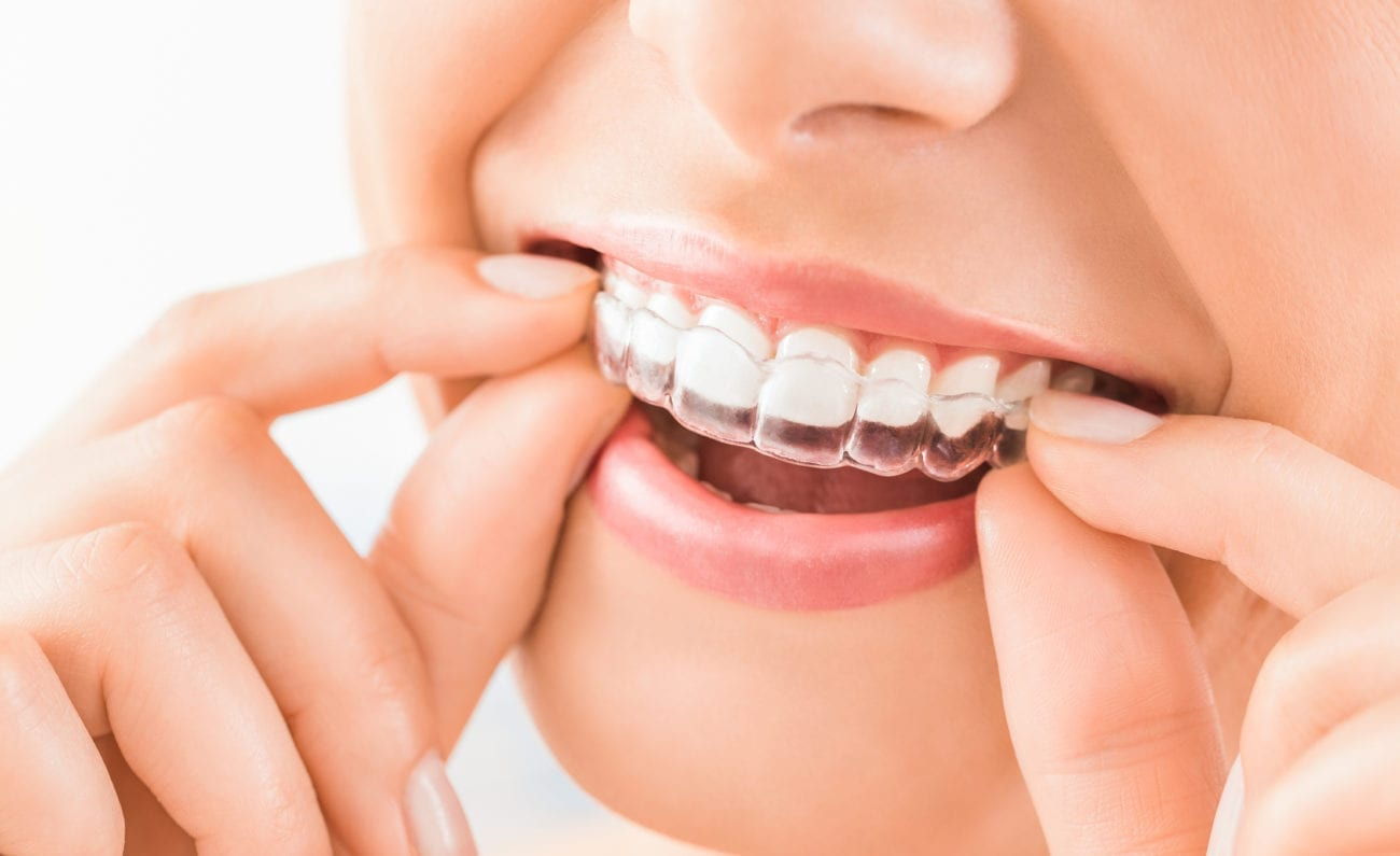 What is Invisalign riverhead ny