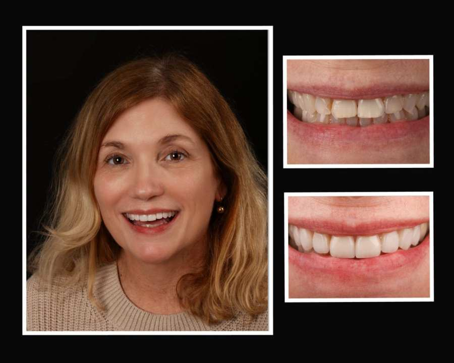Riverhead NY Cosmetic Dentistry Before & After Photos