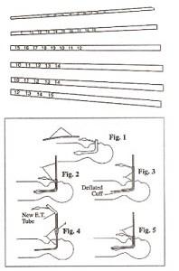 Endotracheal Tube Changer Kit