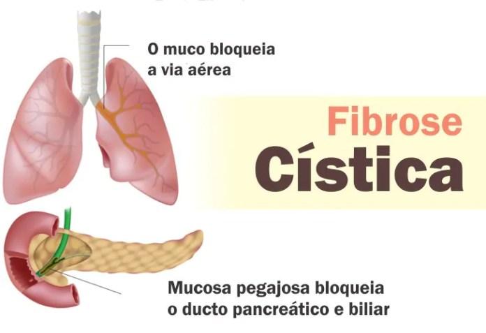 Fibrose Cística tem cura? Veja sintomas, diagnóstico e tratamento