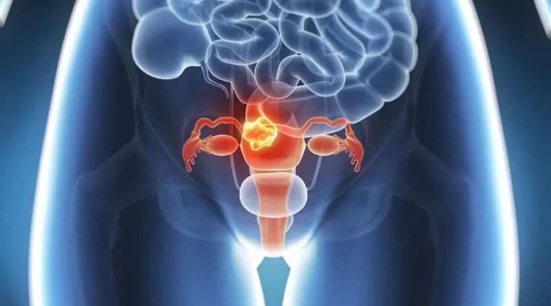 Histerectomia: Cirurgia diminui a barriga? Recuperação, Repouso e Consequencias