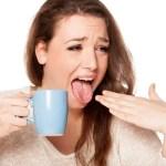 O que fazer quando queimar a língua é uma dúvida recorrente por ser comum de acontecer