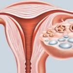 Qual a diferença entre cisto e tumor?