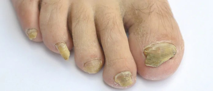 fungos-nas-unhas-dos-pes-causas-e-tratamento O Melhor Remédio Para se Livrar do Fungo das Unhas