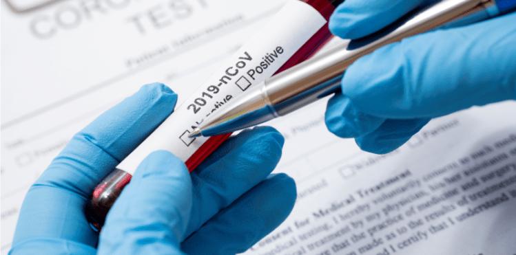 LANAC recebe teste para COVID-19 com 99,8% de eficácia