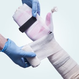 A cotton crepe bandage being applied to a cast