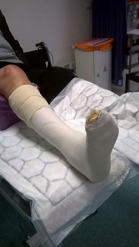 Completed cast with sockinette turned back before reinforcing with either a poly or fiberglass casting tape.