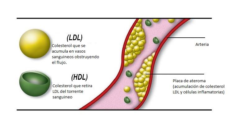 Resultado de imagen para perfil lipidico LDL HDL bueno malo