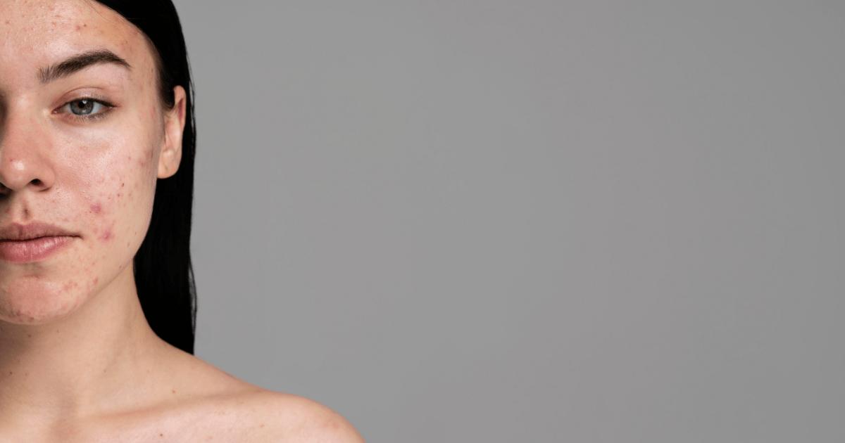 How to treat acne with Aloe Vera
