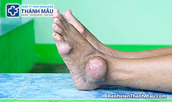 bệnh gout biến chứng bệnh gout