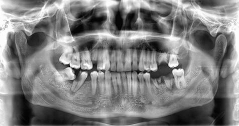 Usuwanie zębów Dąbrowa Górnicza