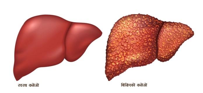 healthy-liver-bad-liver