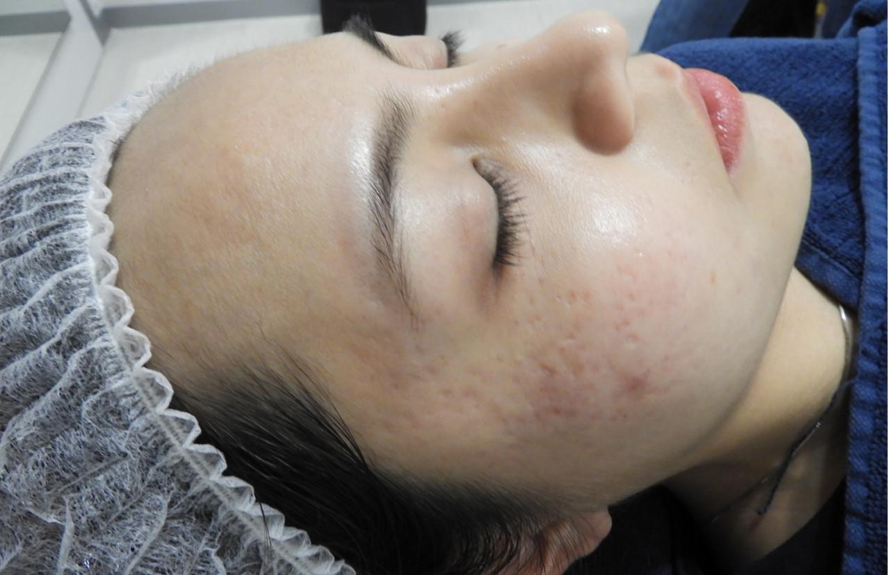 acne-scar-removal