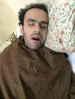 A photo of Mohamed Soltan after being tortured, while in Egyptian detention