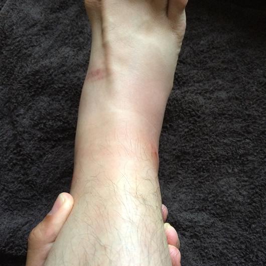 ブヨに刺された足