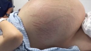 Something Extraordinary Was Found During Her Pregnancy