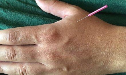 Chinesische Akupunktur jetzt auch in Andermatt