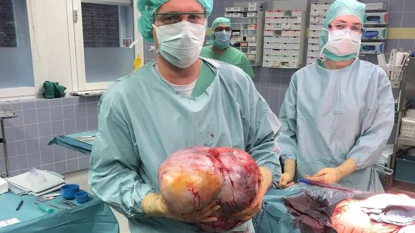 Risultato immagini per tumore di 12 kg