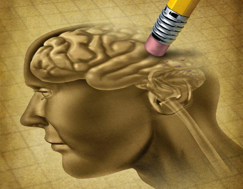 Exercício Físico retarda Alzheimer