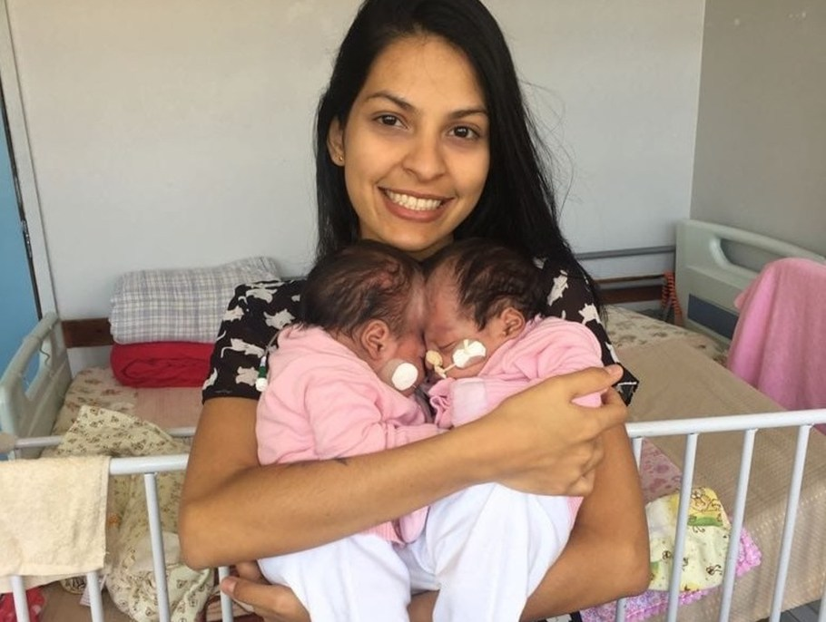 Gêmeas Mel e Lis, separadas por cirurgia complexa no DF têm alta médica - Bernadete Alves